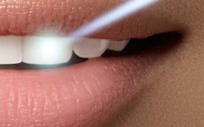 Lichen planus Orale l'efficacia del laser