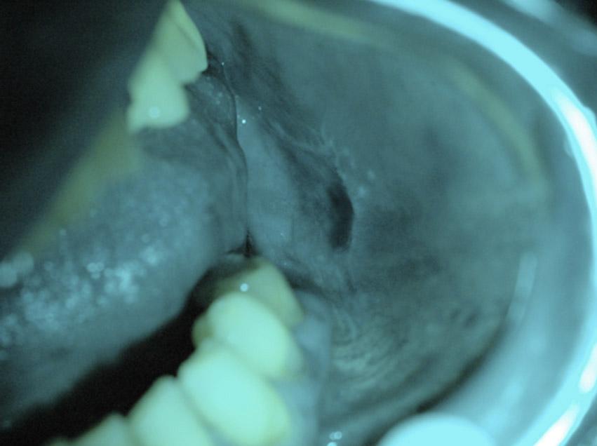 Utilizzo dell'autofluorescenza nella diagnosi precoce del cancro orale