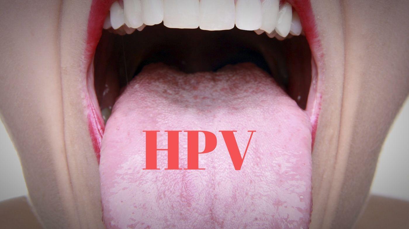 hpv lingua sintomi)